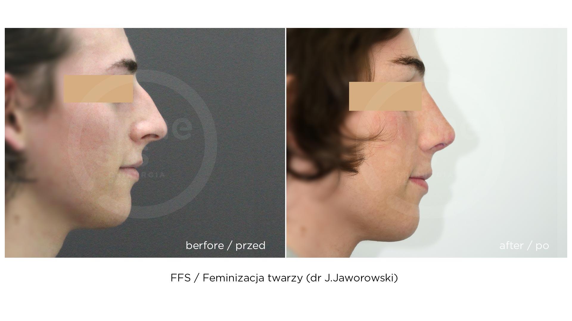 Feminizacja twarzy FFS