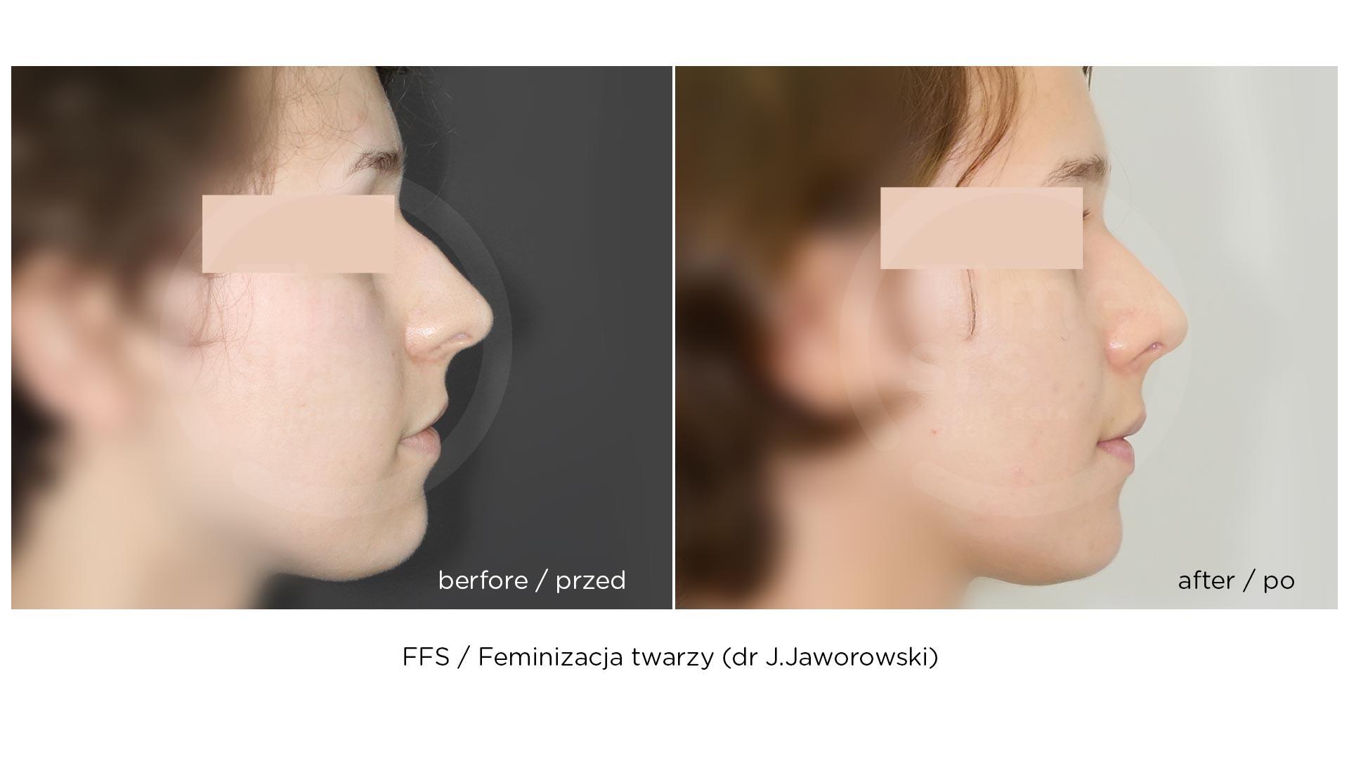 FFS-feminizacja-twarzy-chirurgiaplci