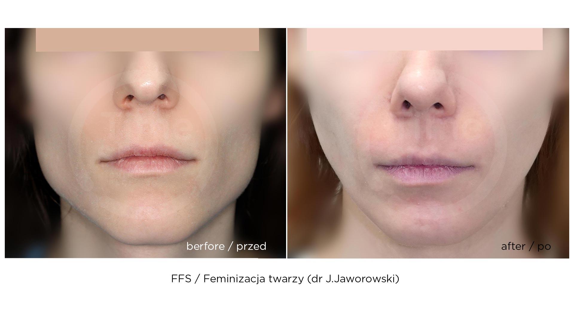 FFS-feminizacja-twarzy-chirurgiaplci-2