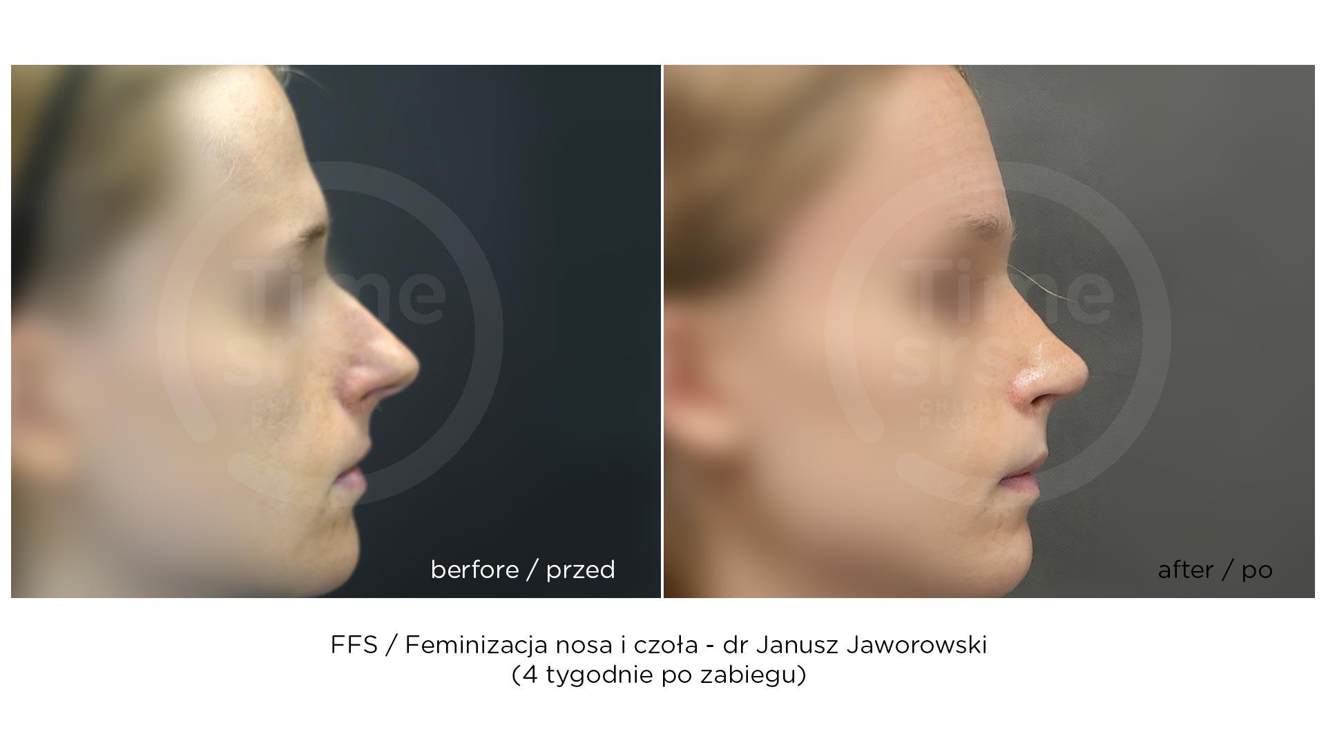 FFS_przed-po_chirurgiaplci-202011
