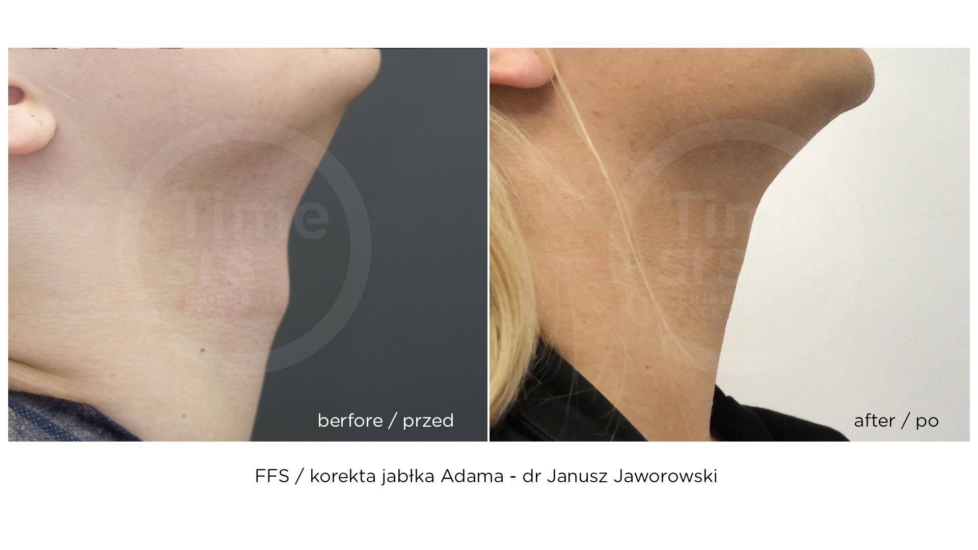 FFS-przed-po-chirurgiaplci-jablko-adama-3
